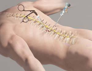 Minimally Invasive Spine Surgery (MISS)